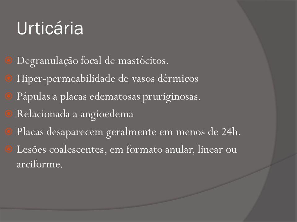 Urticária Degranulação focal de mastócitos.