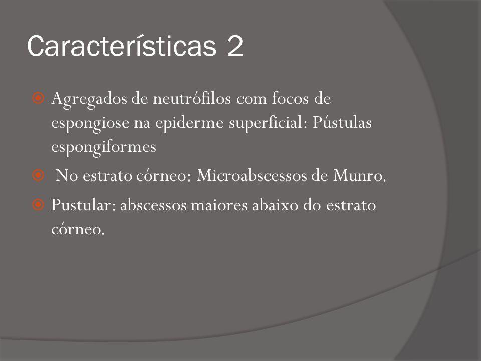 Características 2 Agregados de neutrófilos com focos de espongiose na epiderme superficial: Pústulas espongiformes.