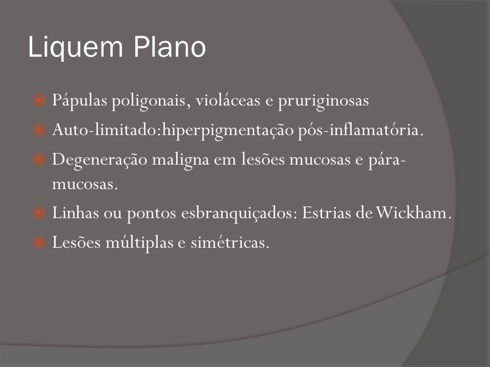 Liquem Plano Pápulas poligonais, violáceas e pruriginosas