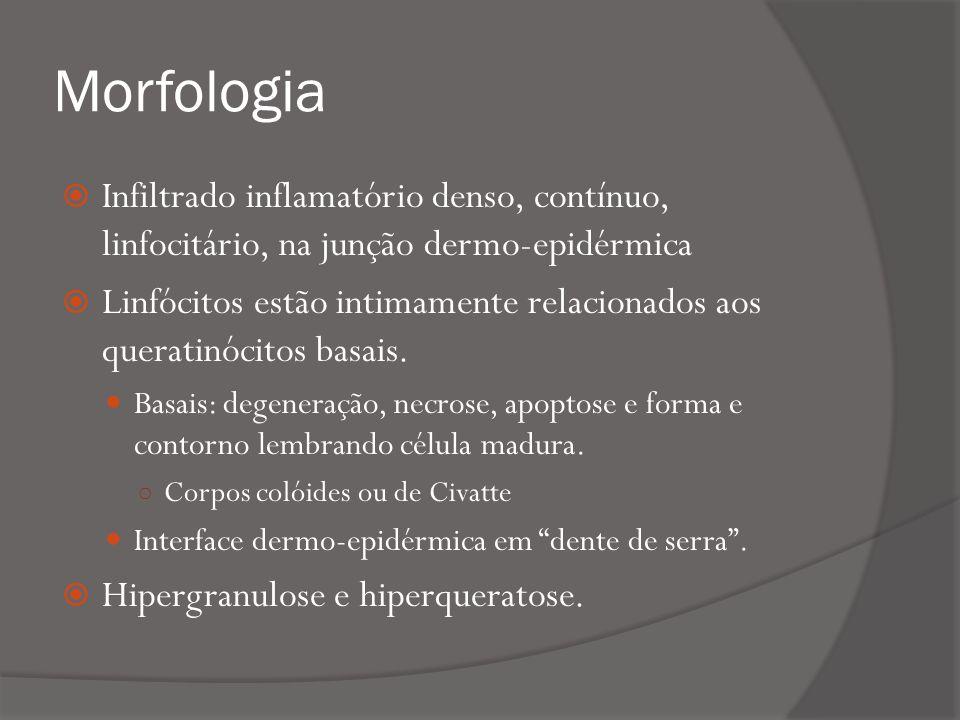 Morfologia Infiltrado inflamatório denso, contínuo, linfocitário, na junção dermo-epidérmica.