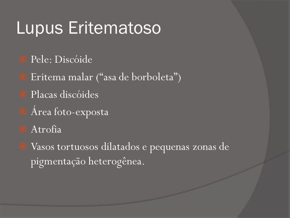 Lupus Eritematoso Pele: Discóide Eritema malar ( asa de borboleta )
