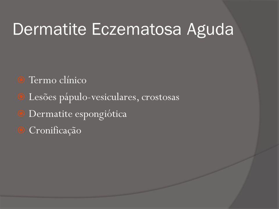 Dermatite Eczematosa Aguda