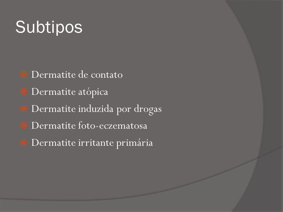 Subtipos Dermatite de contato Dermatite atópica