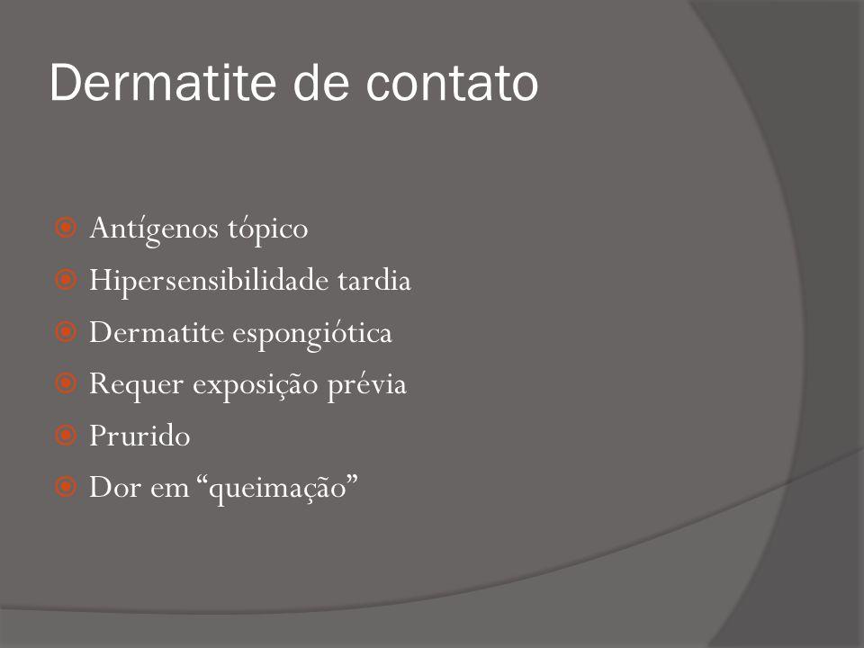Dermatite de contato Antígenos tópico Hipersensibilidade tardia