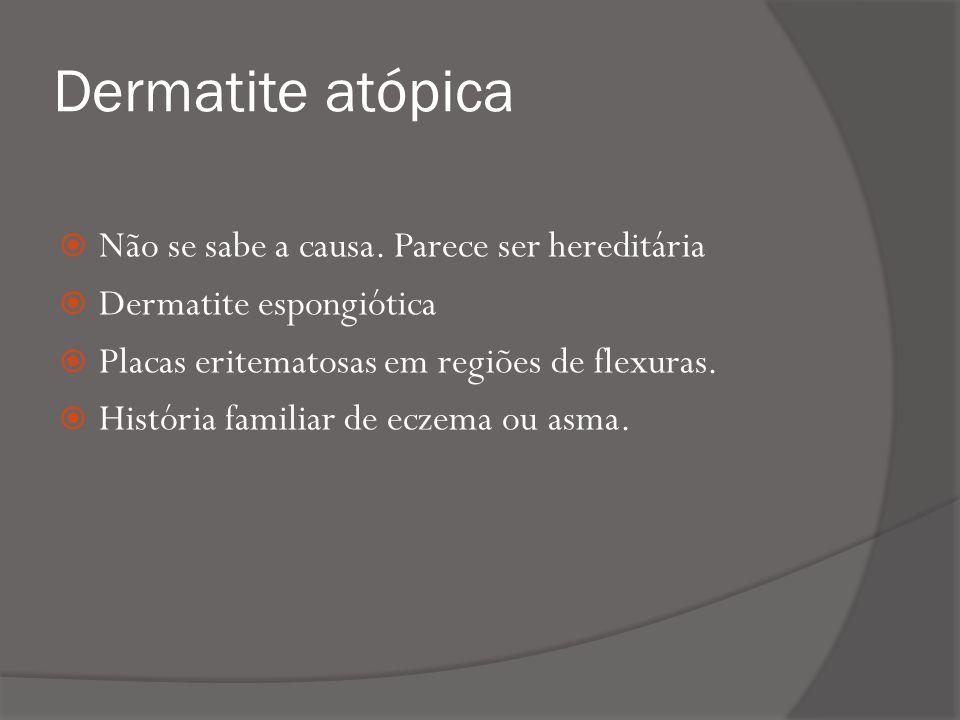 Dermatite atópica Não se sabe a causa. Parece ser hereditária