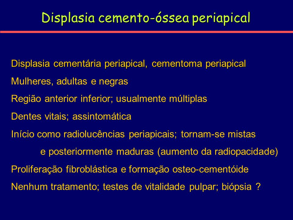 Displasia cemento-óssea periapical