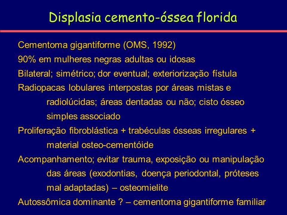 Displasia cemento-óssea florida