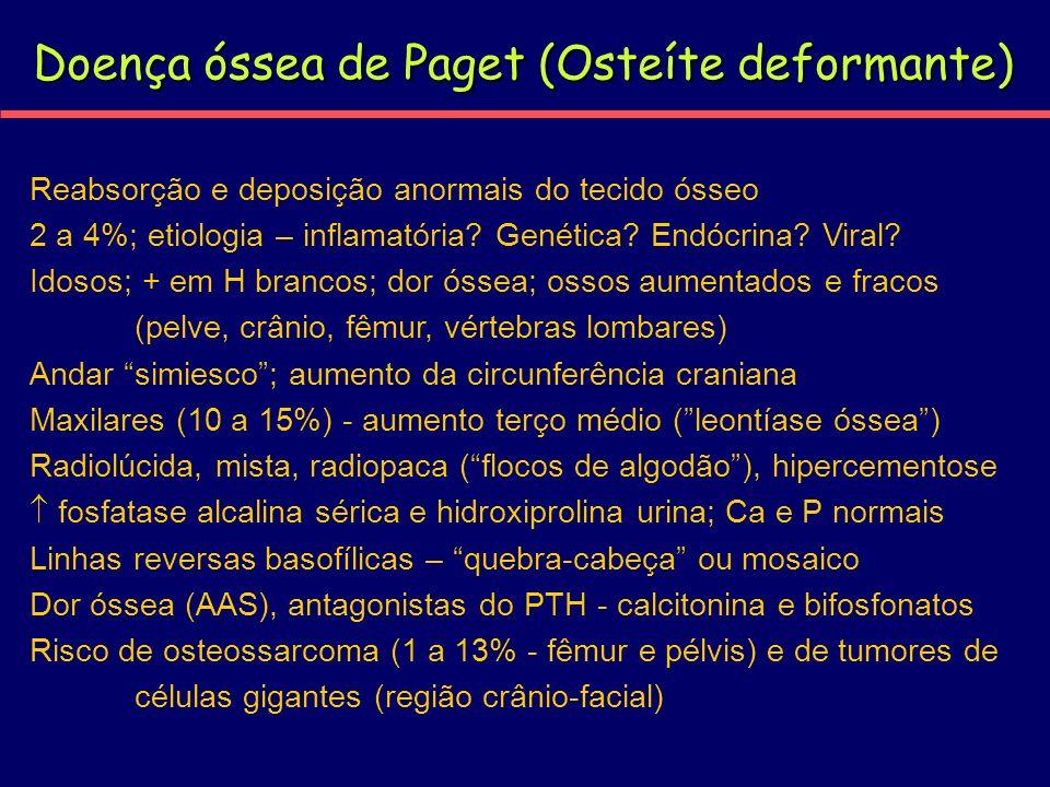Doença óssea de Paget (Osteíte deformante)