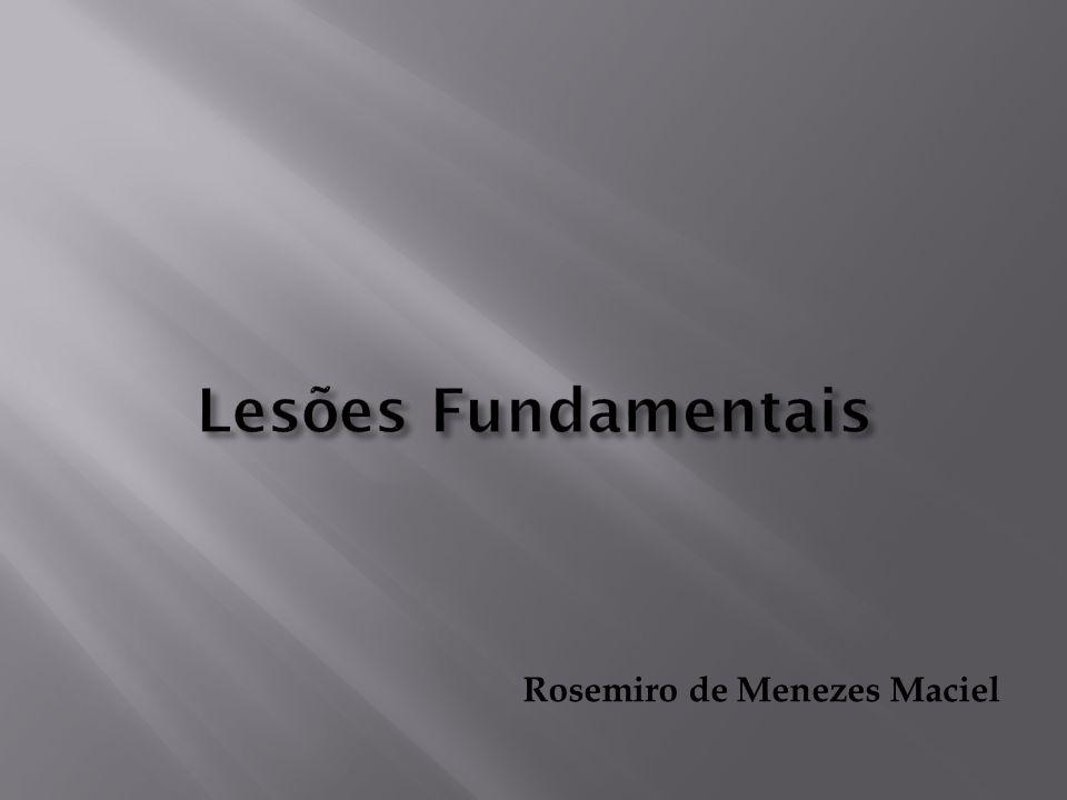 Lesões Fundamentais Rosemiro de Menezes Maciel