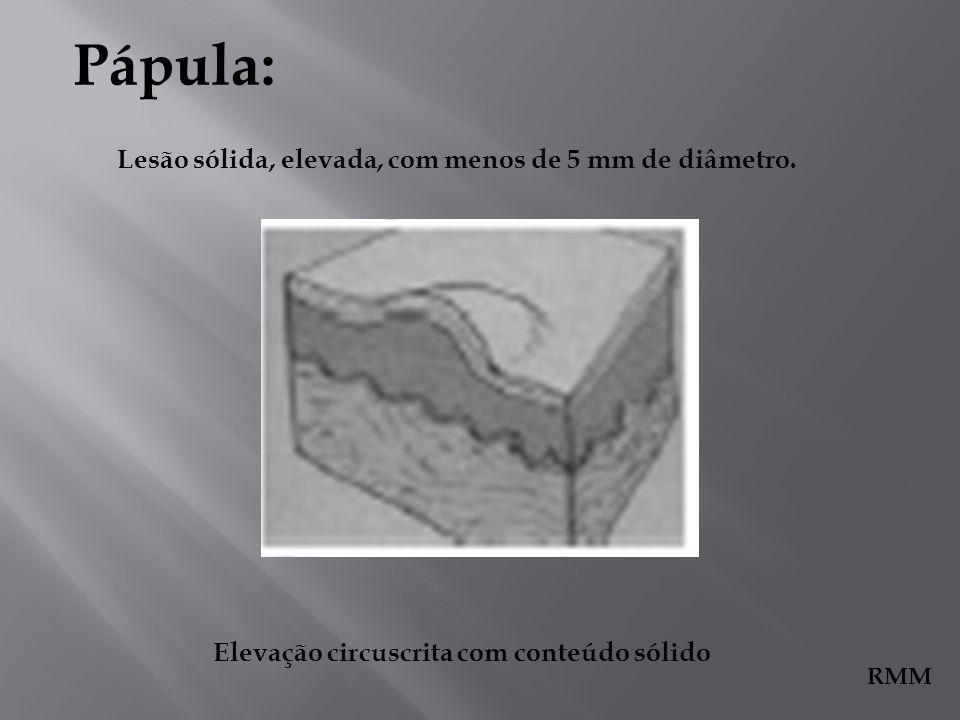 Pápula: Lesão sólida, elevada, com menos de 5 mm de diâmetro.