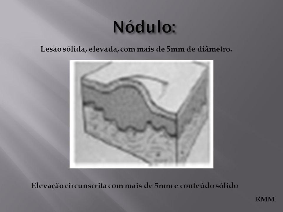 Nódulo: Lesão sólida, elevada, com mais de 5mm de diâmetro.