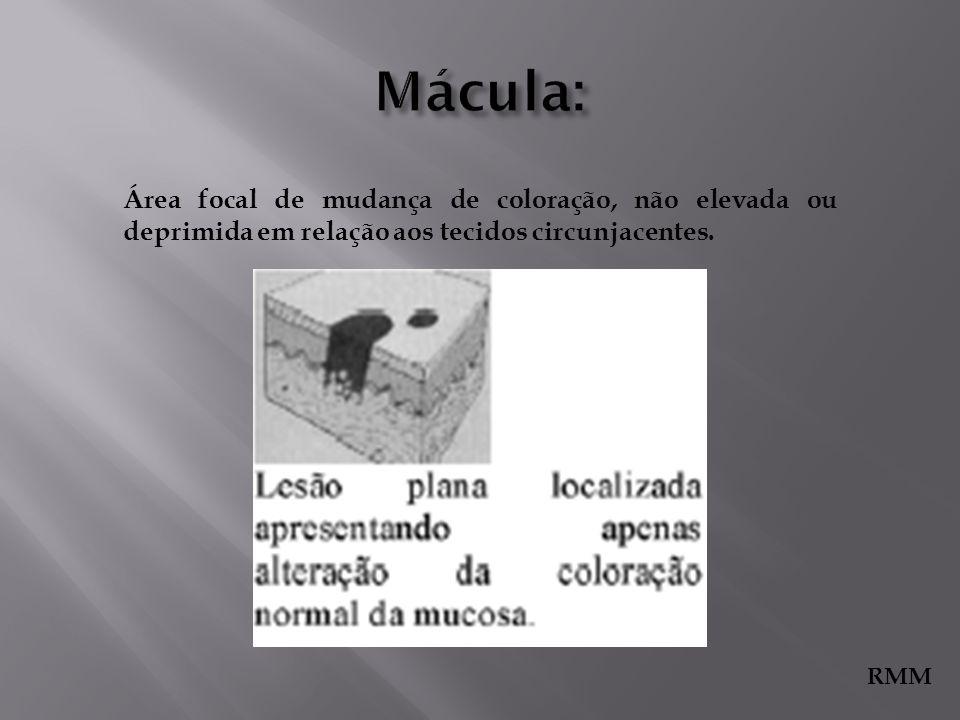 Mácula: Área focal de mudança de coloração, não elevada ou deprimida em relação aos tecidos circunjacentes.