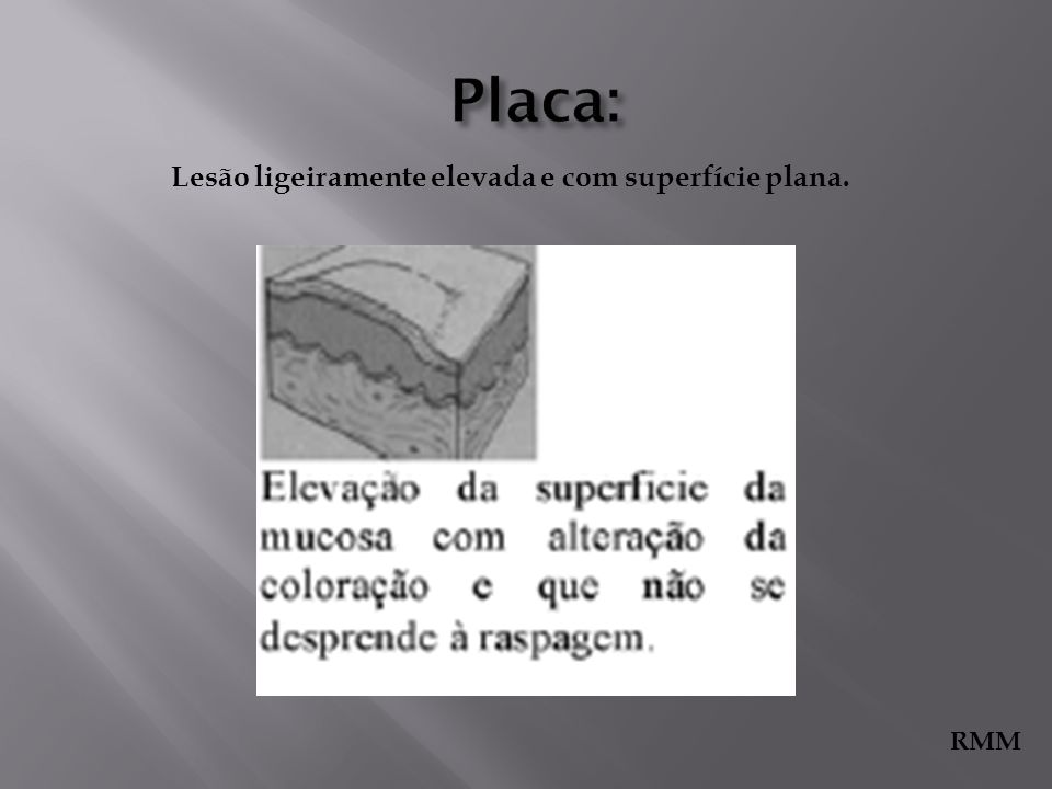 Placa: Lesão ligeiramente elevada e com superfície plana. RMM