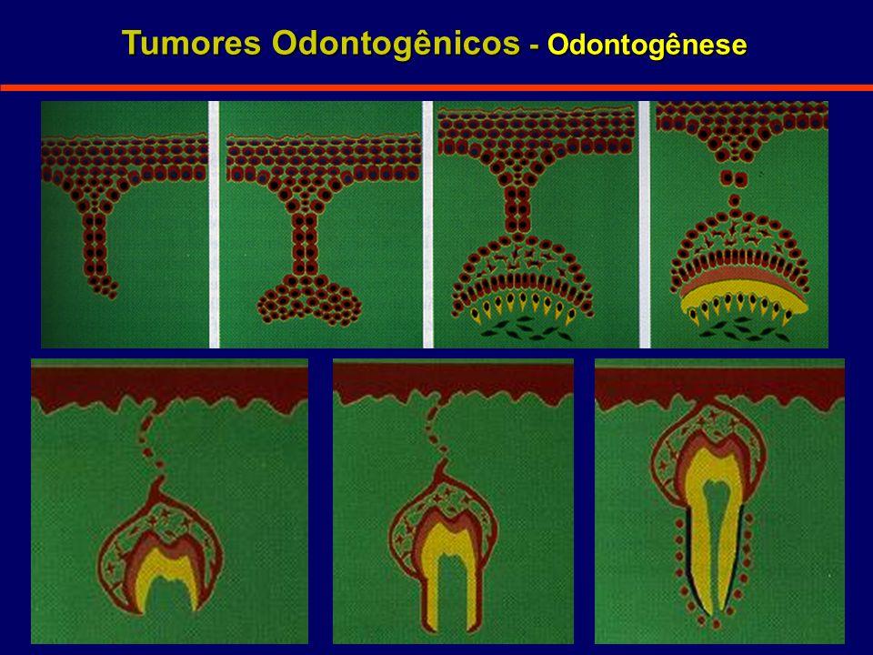 Tumores Odontogênicos - Odontogênese