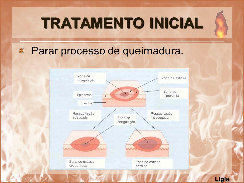 TRATAMENTO INICIAL Parar processo de queimadura. Ligia