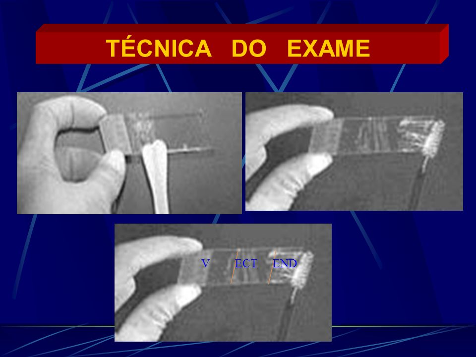 TÉCNICA DO EXAME V ECT END