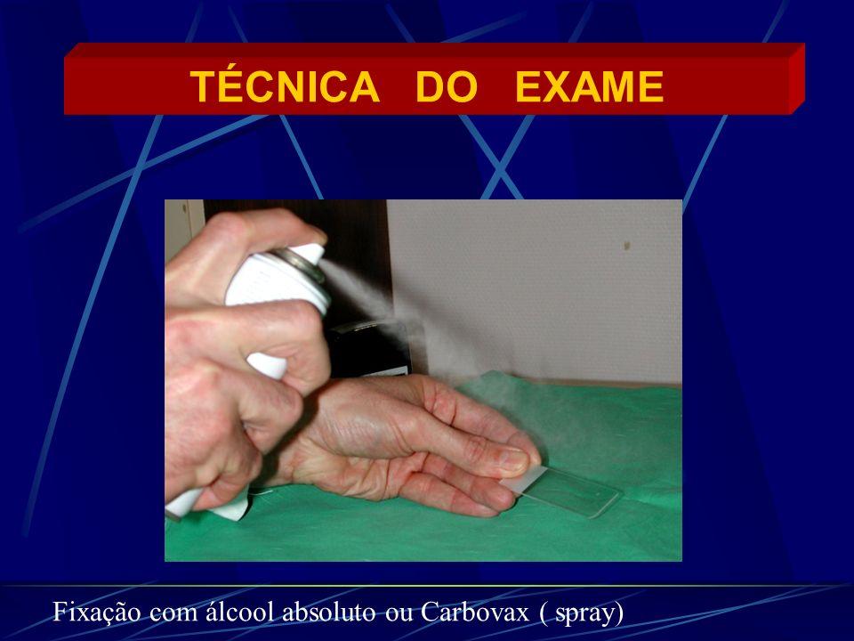 TÉCNICA DO EXAME Fixação com álcool absoluto ou Carbovax ( spray)