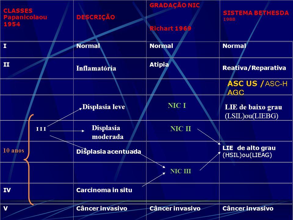 Inflamatória ASC US /ASC-H AGC NIC I Displasia leve LIE de baixo grau