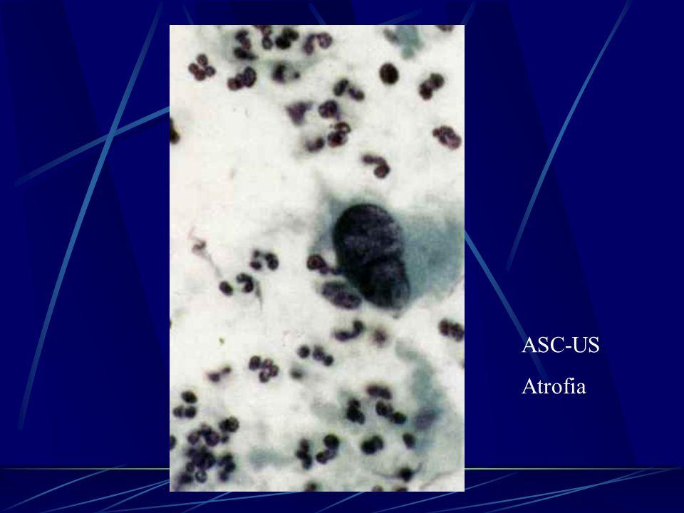 ASC-US Atrofia