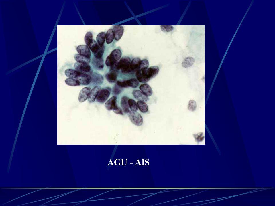 AGU - AIS