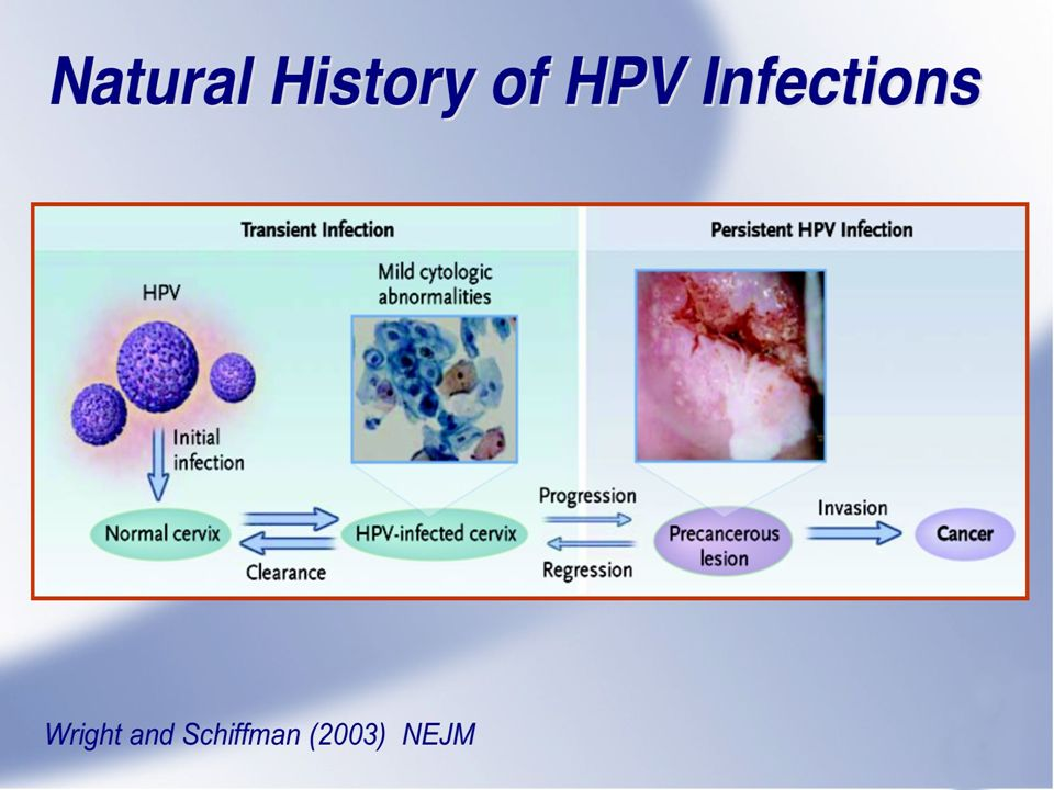 This diagram was developed several years ago to explain the natural history of HPV infections to clinicians.