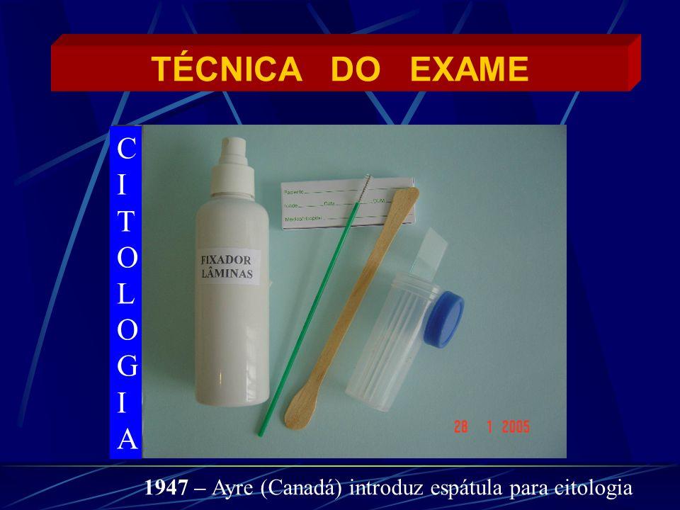 TÉCNICA DO EXAME CITOLOGIA