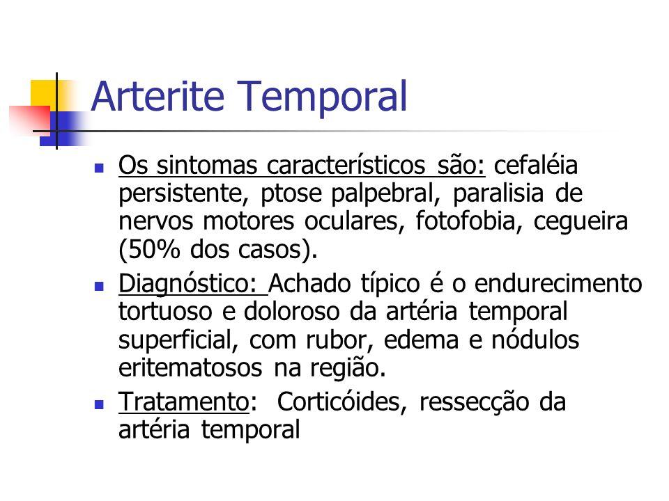Arterite Temporal