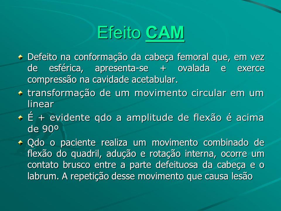 Efeito CAM Defeito na conformação da cabeça femoral que, em vez de esférica, apresenta-se + ovalada e exerce compressão na cavidade acetabular.