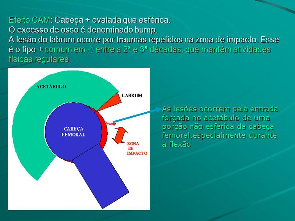 Efeito CAM: Cabeça + ovalada que esférica