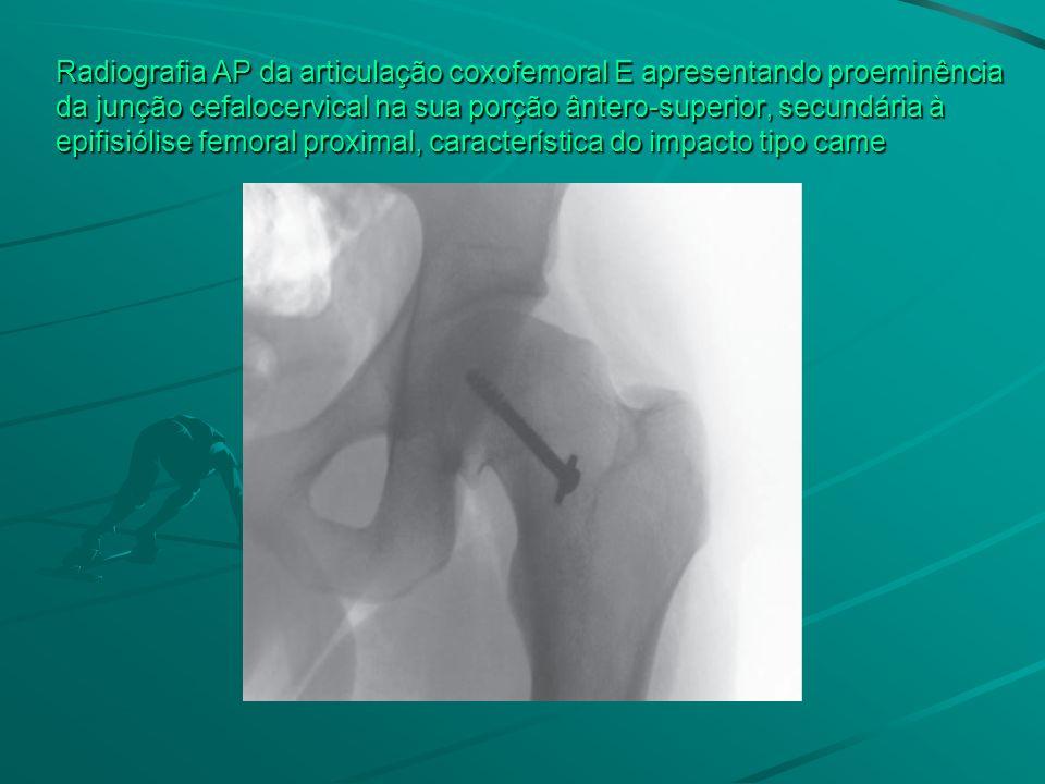 Radiografia AP da articulação coxofemoral E apresentando proeminência da junção cefalocervical na sua porção ântero-superior, secundária à epifisiólise femoral proximal, característica do impacto tipo came