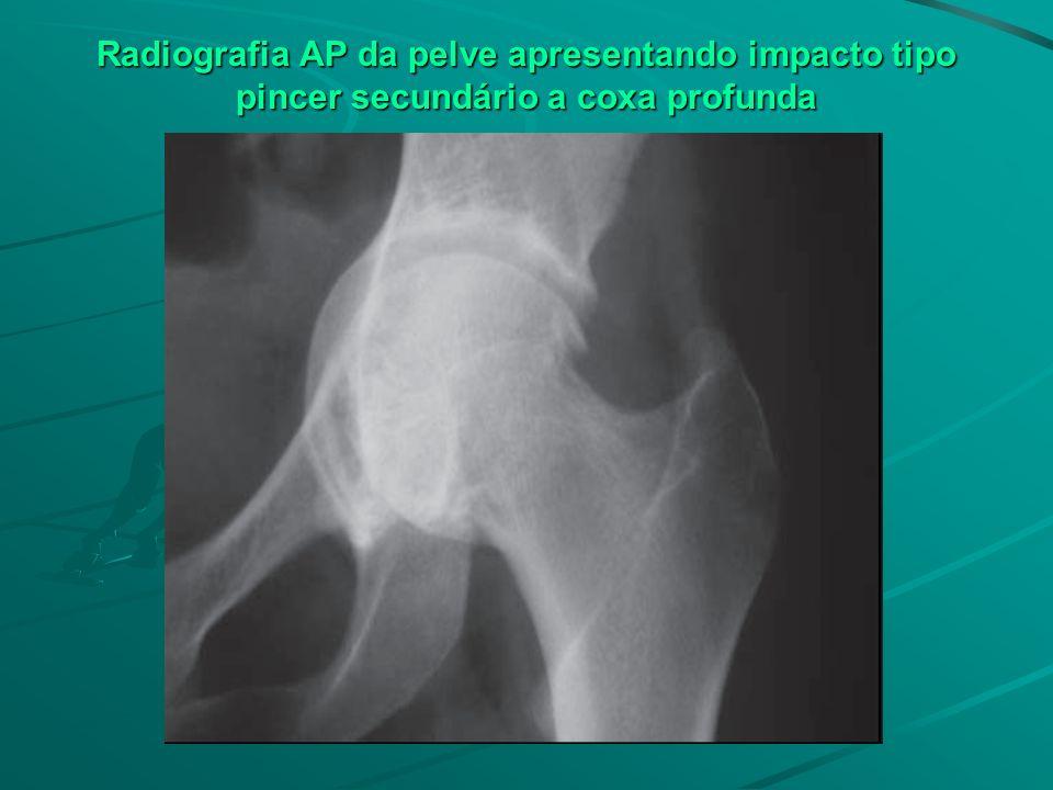 Radiografia AP da pelve apresentando impacto tipo pincer secundário a coxa profunda