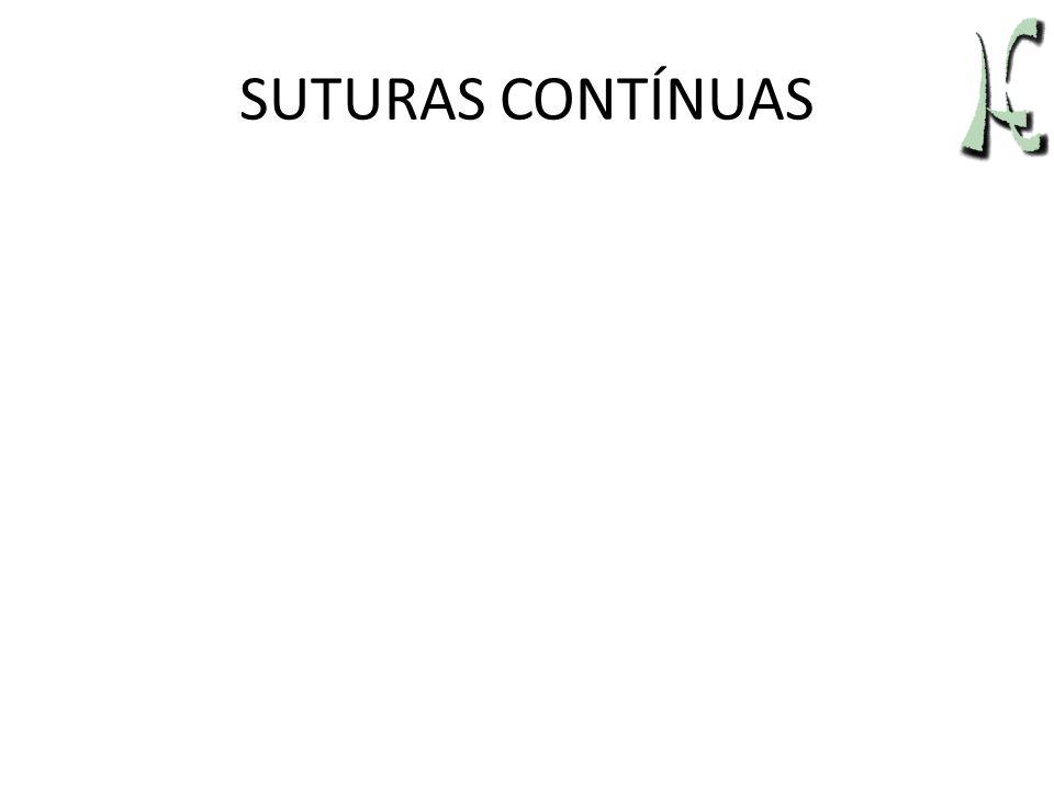 SUTURAS CONTÍNUAS