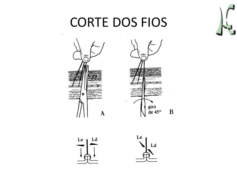 CORTE DOS FIOS