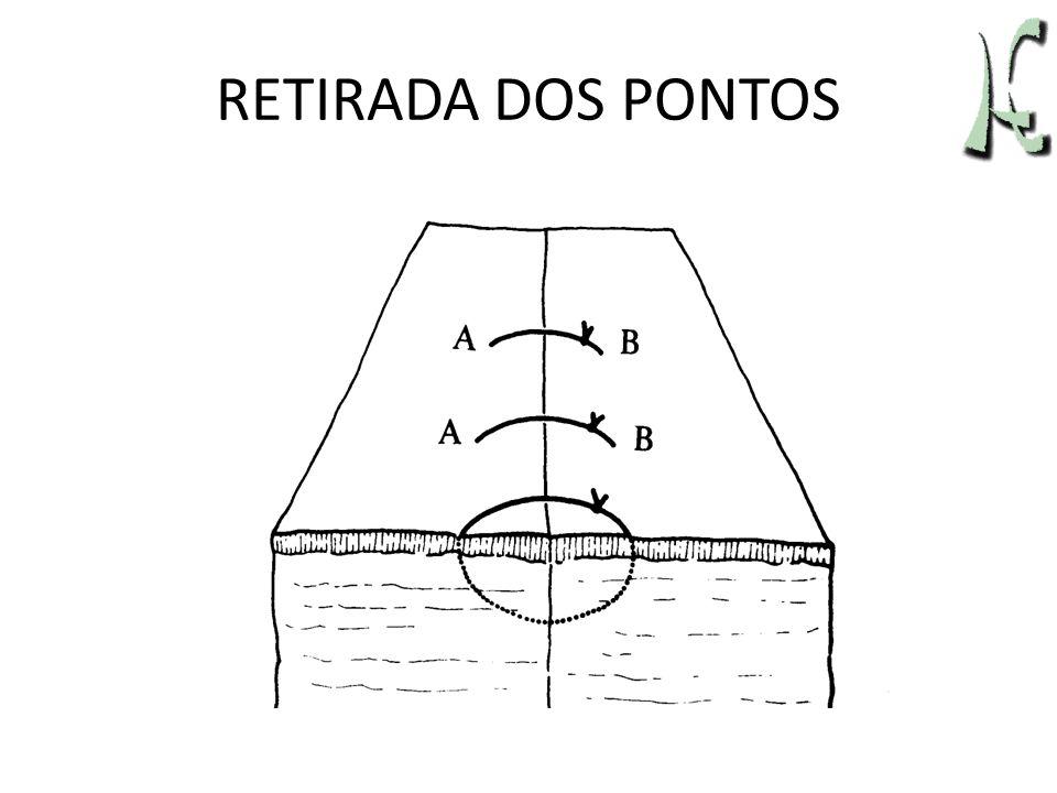 RETIRADA DOS PONTOS