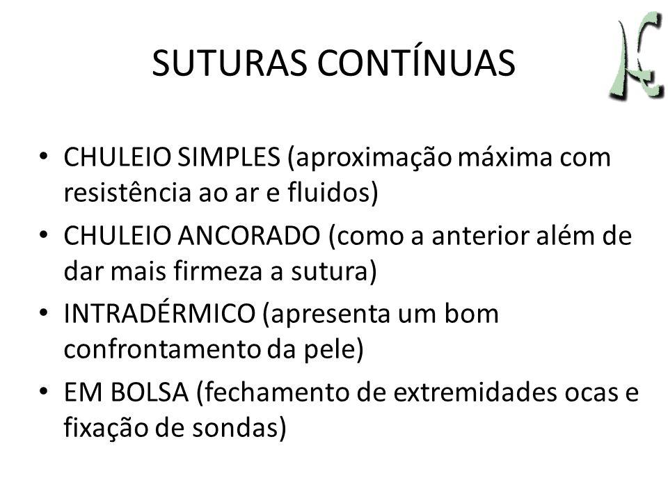 SUTURAS CONTÍNUAS CHULEIO SIMPLES (aproximação máxima com resistência ao ar e fluidos)