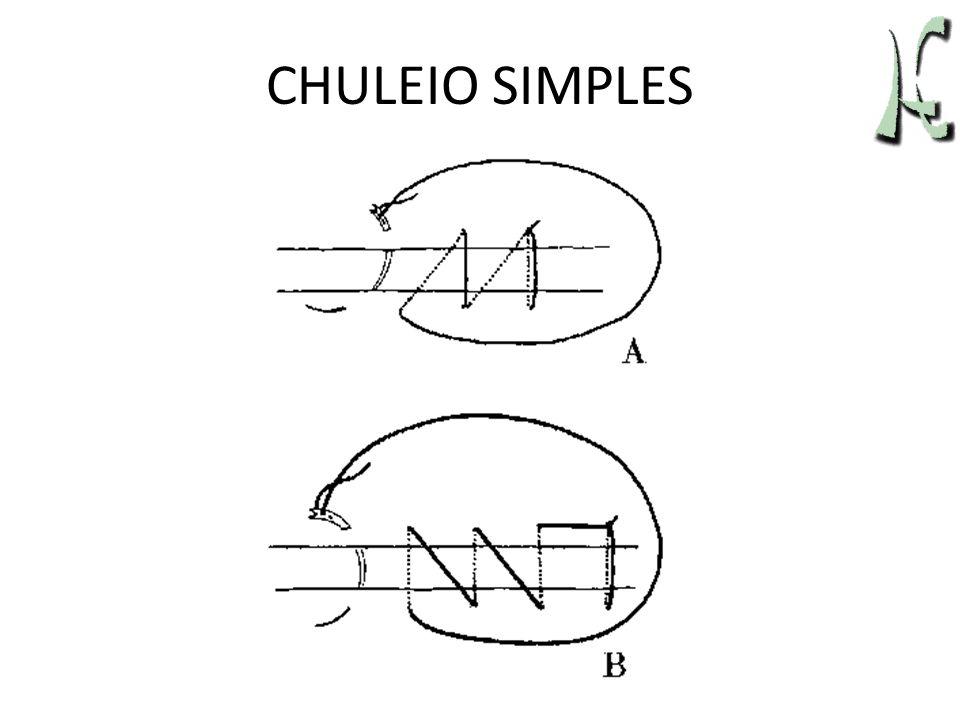 CHULEIO SIMPLES