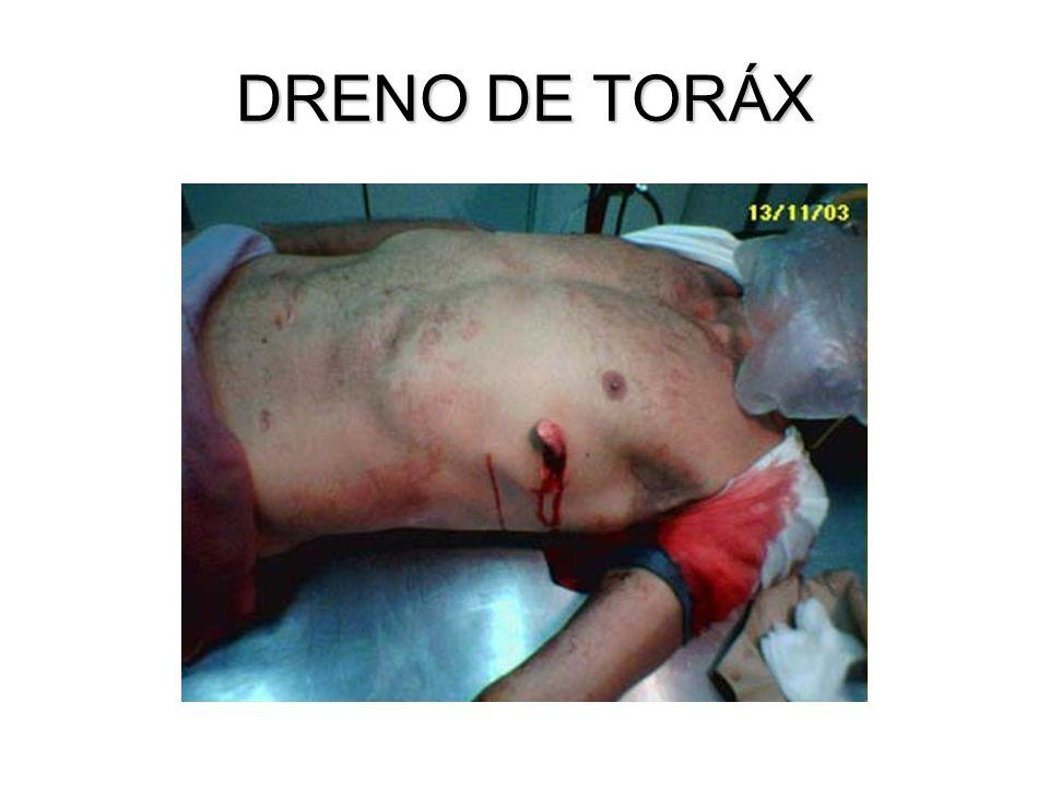 DRENO DE TORÁX