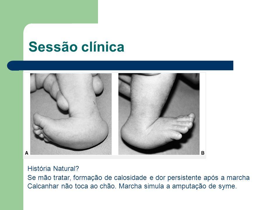 Sessão clínica . História Natural