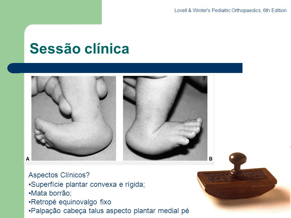 Sessão clínica . Aspectos Clínicos