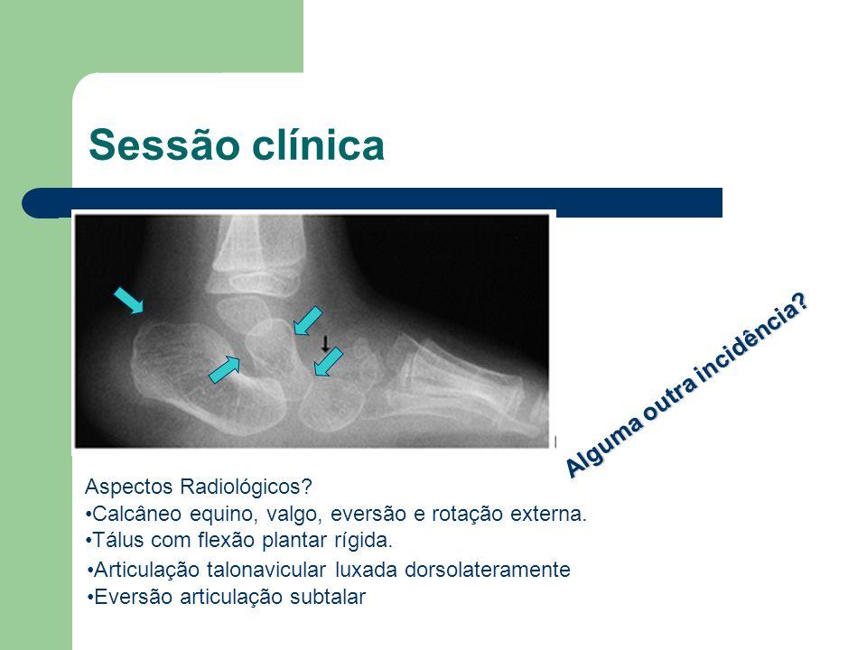 Sessão clínica . Alguma outra incidência Aspectos Radiológicos