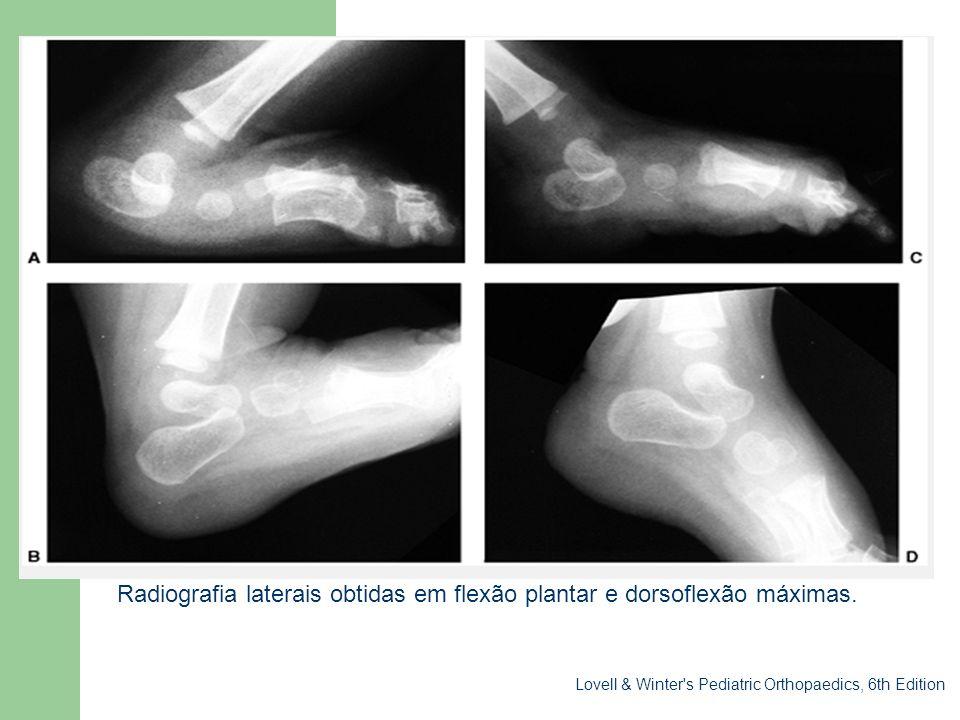 Sessão clínica Radiografia laterais obtidas em flexão plantar e dorsoflexão máximas.