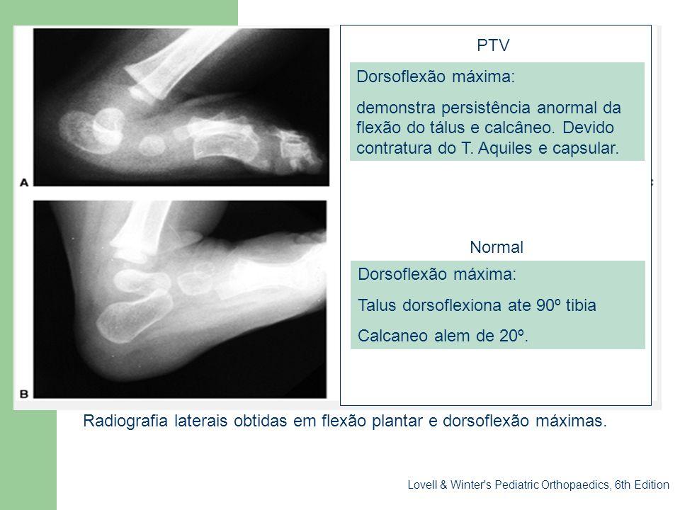 Sessão clínica PTV Dorsoflexão máxima: