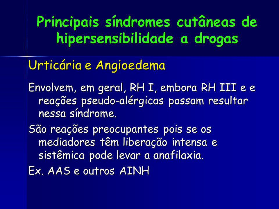 Principais síndromes cutâneas de hipersensibilidade a drogas