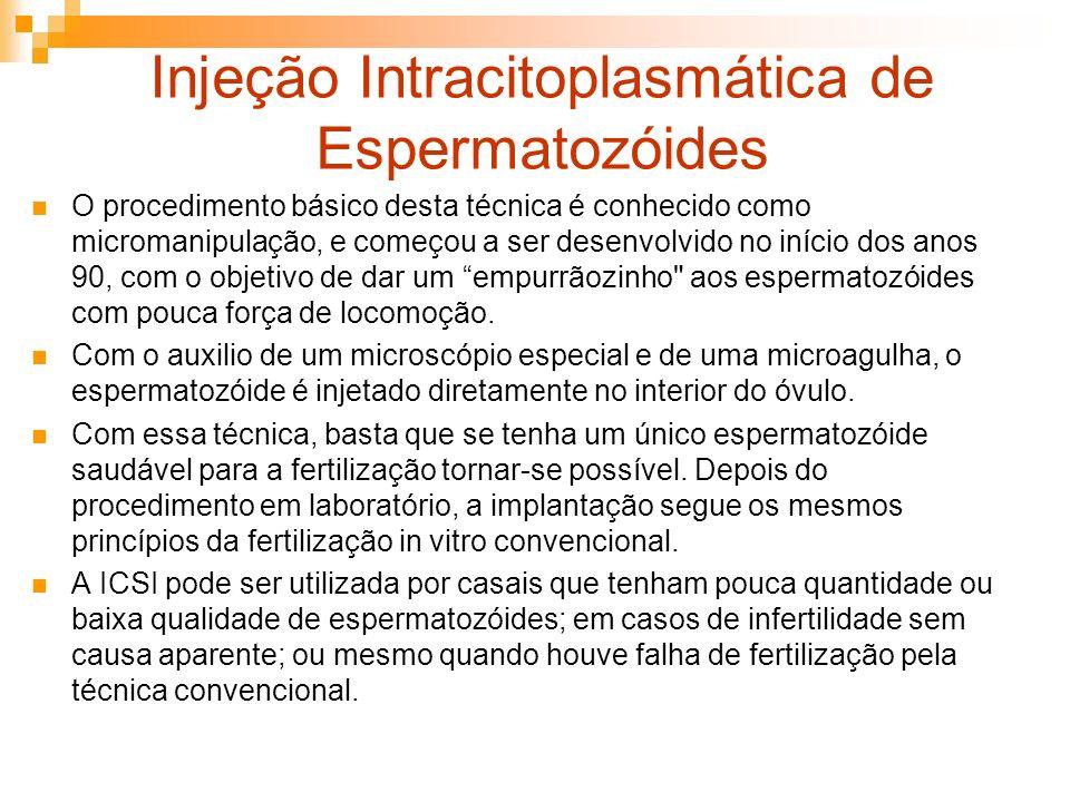 Injeção Intracitoplasmática de Espermatozóides