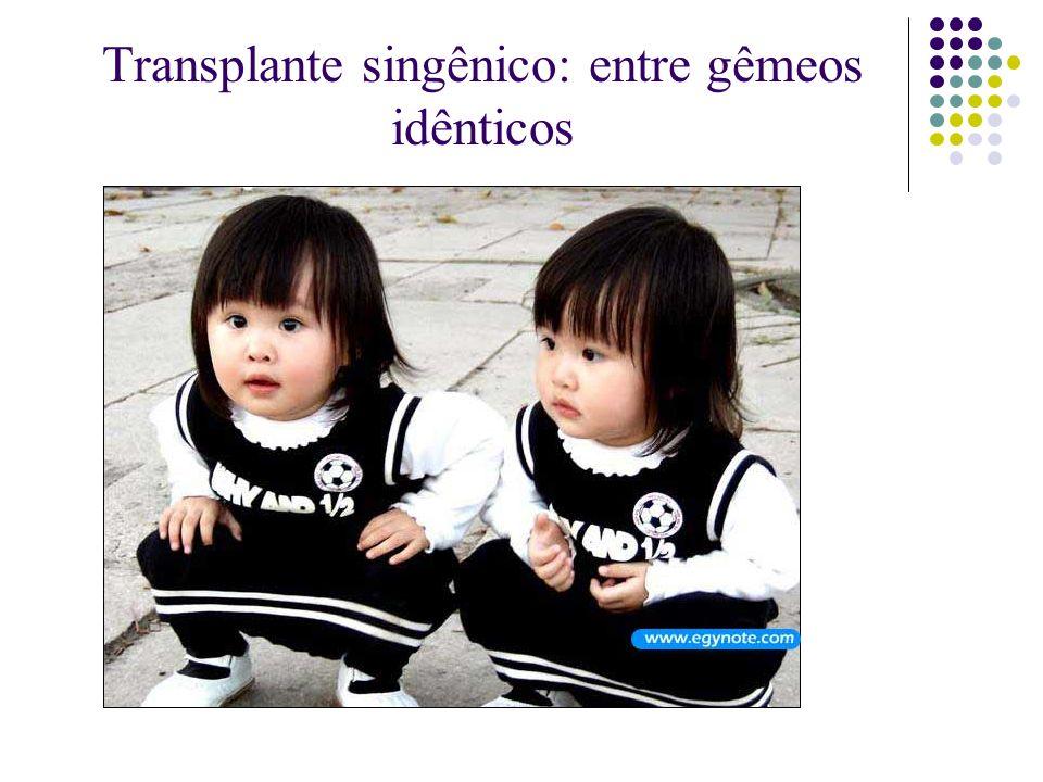Transplante singênico: entre gêmeos idênticos