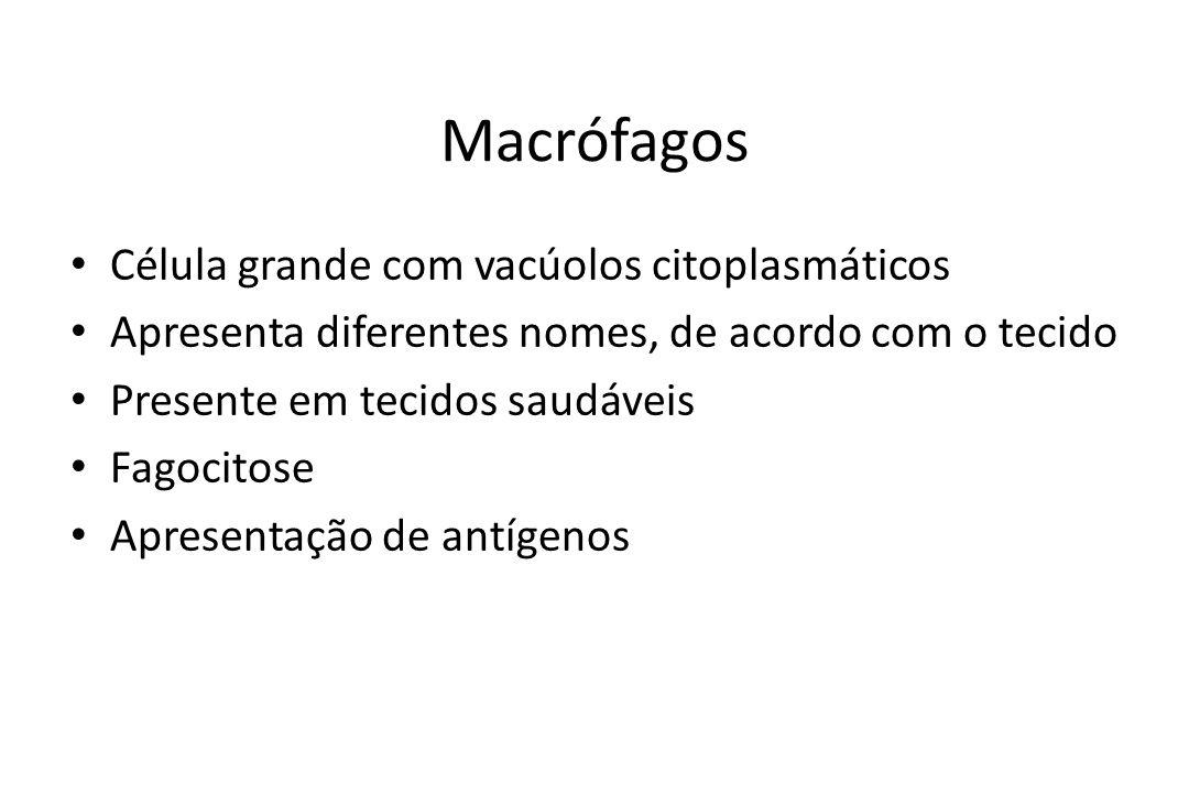 Macrófagos Célula grande com vacúolos citoplasmáticos