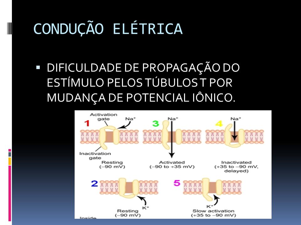 CONDUÇÃO ELÉTRICA DIFICULDADE DE PROPAGAÇÃO DO ESTÍMULO PELOS TÚBULOS T POR MUDANÇA DE POTENCIAL IÔNICO.