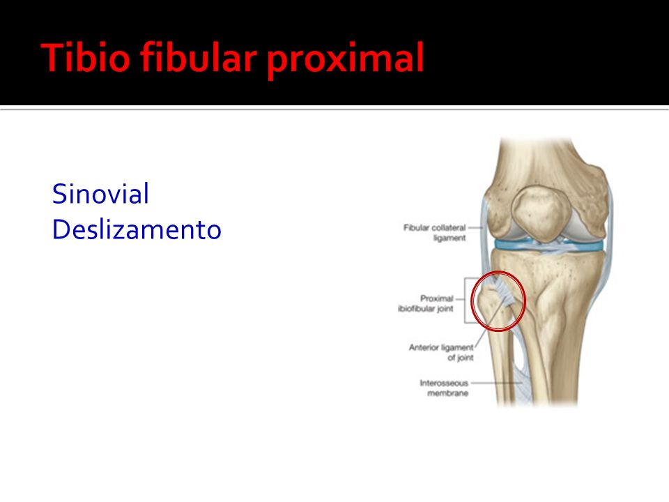 Tibio fibular proximal