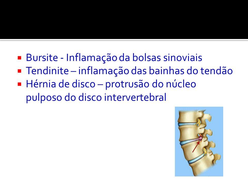 Bursite - Inflamação da bolsas sinoviais