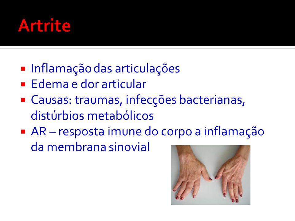 Artrite Inflamação das articulações Edema e dor articular